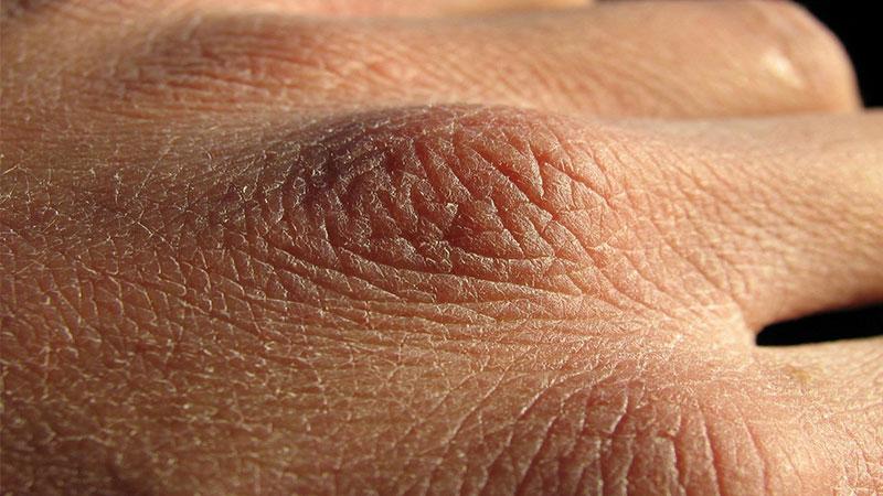 بریدگی ها و ترک های پوستی راه انتقال وبروس کرونا